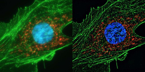 Human cell super resolution | by ZEISS Microscopy