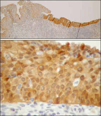 P16 IHC stain | by Pathology Outlines