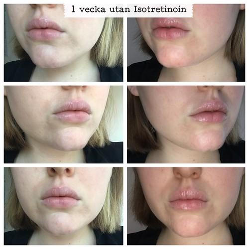vilitra 10 mg price