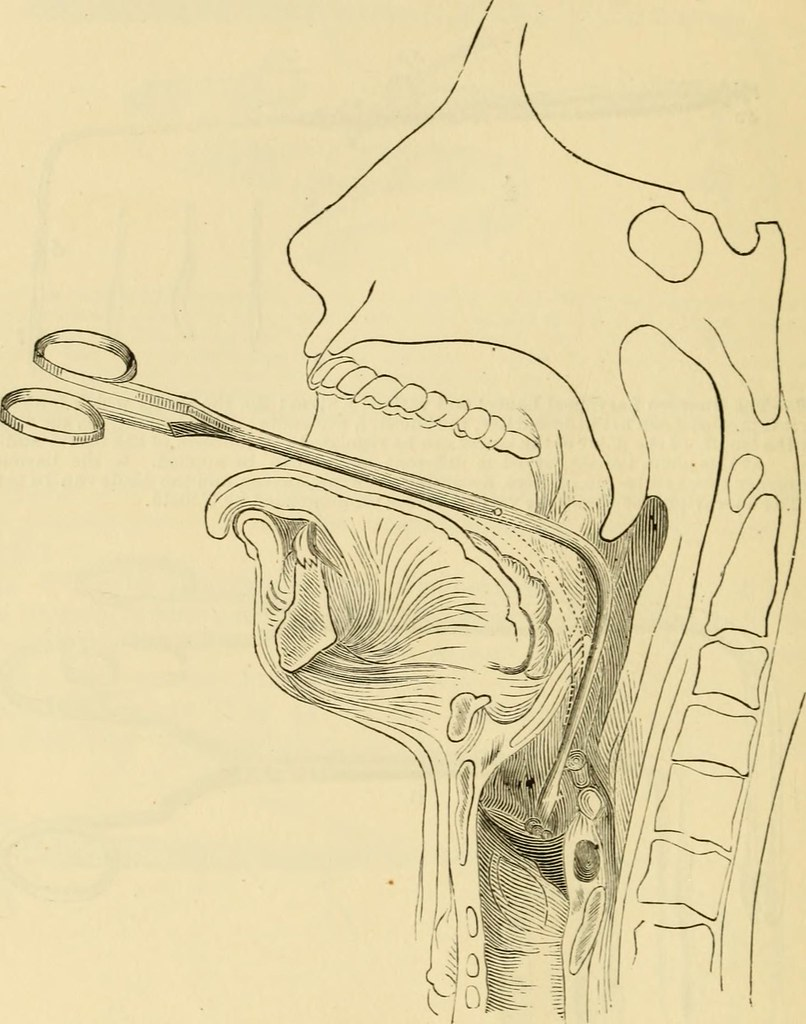 A Manual Of Diseases Of The Throat And Nose