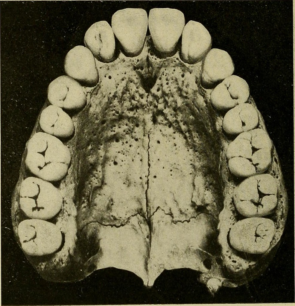 """... Image from page 29 of """"Operative and dental anatomy technics; a  class-room"""