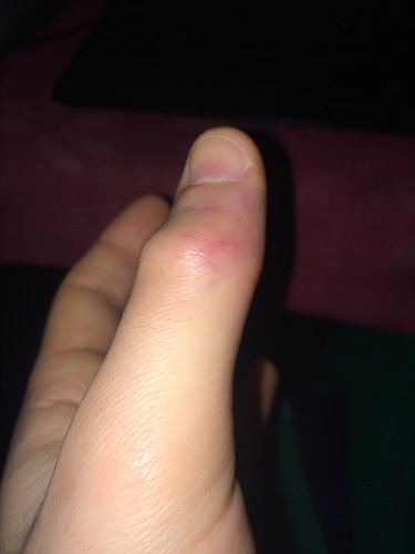 Left Thumb Injury (Feb 26 2016) (1)
