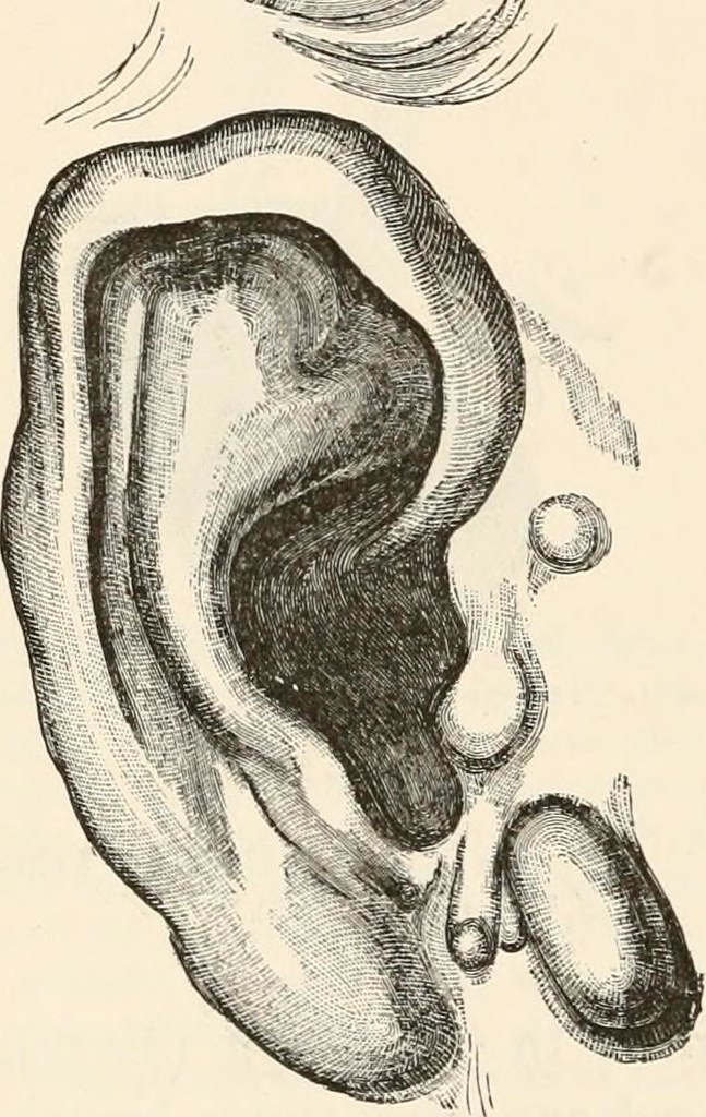 Image From Page 49 Of The Pathological Anatomy Of The Ear Flickr