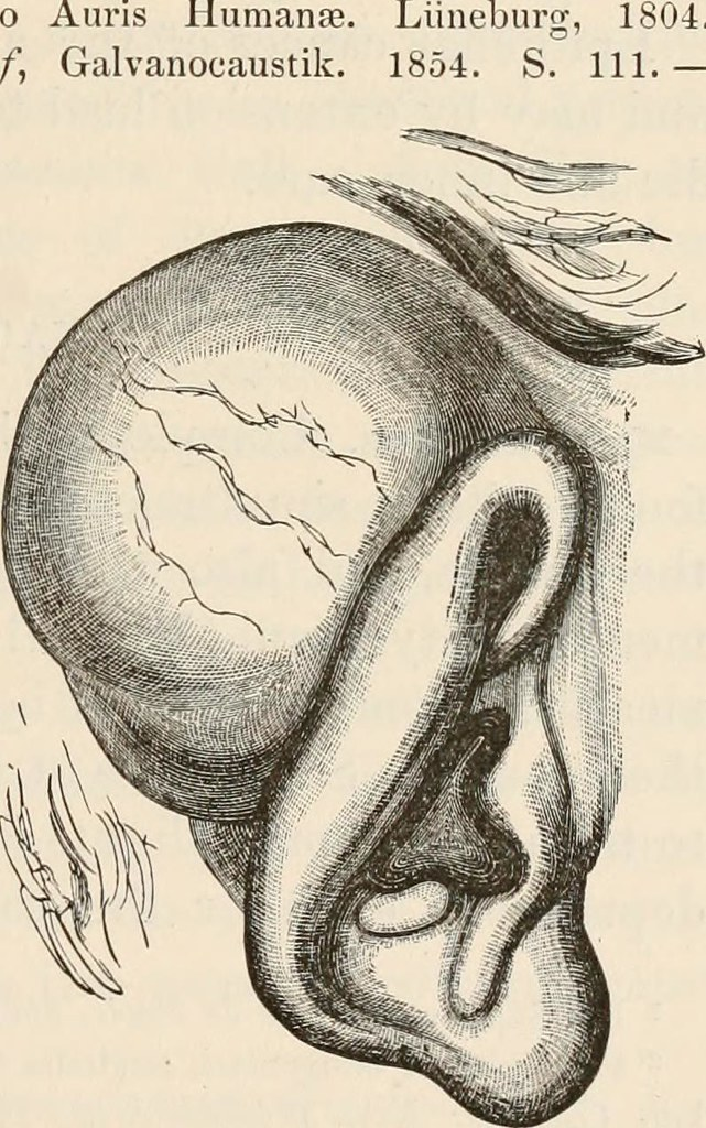 Image From Page 52 Of The Pathological Anatomy Of The Ear Flickr