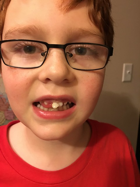 Trying to make a date with the tooth fairy before bedtime