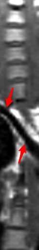 subclavia derecha aberrante coronal