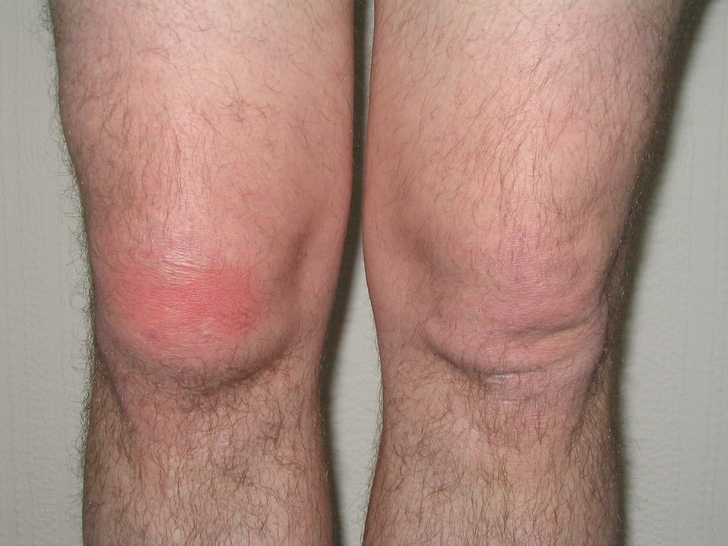 Early cellulitis right knee | Responded well to oral Fluclox… | Flickr