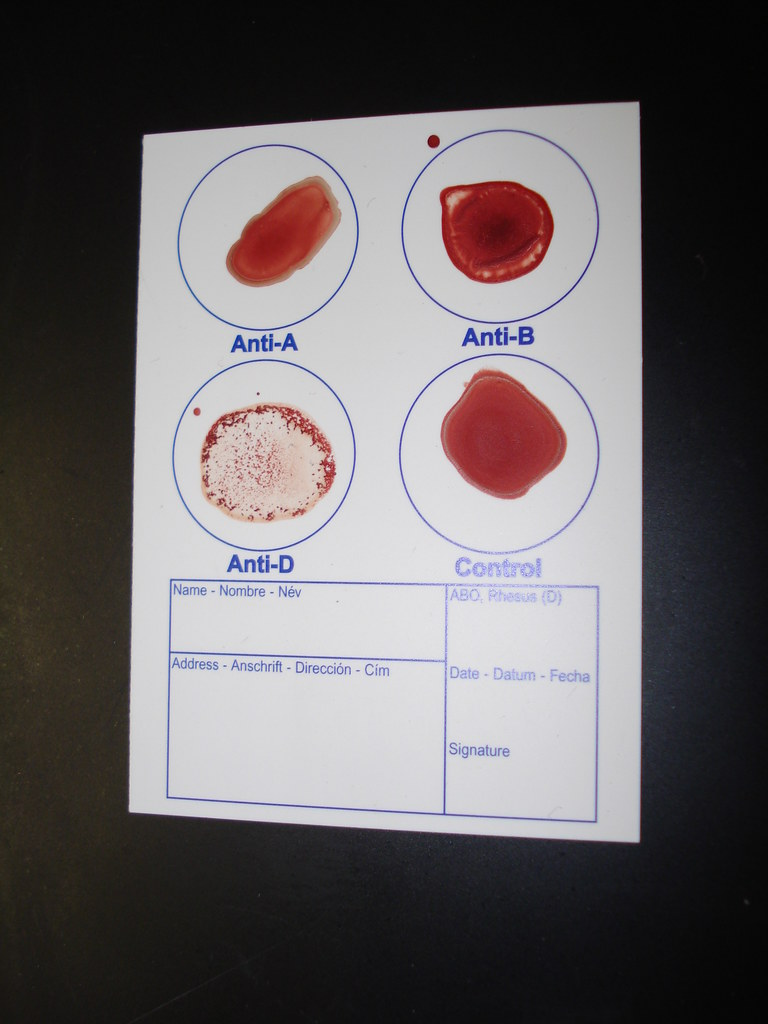 blood type o positive this was a real blood test blood