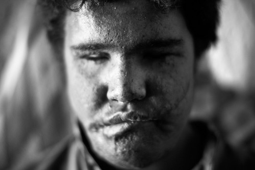 C - Jabar Karim, 15 years old, blinded by a cluster bomb explosion, Iraq | by United Nations Development Programme