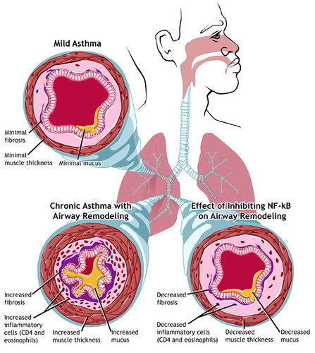 Asthma: Mild and Chronic | by NIAID