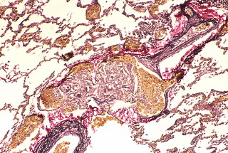 Angiomatoid (plexiform)  lesion | by Pulmonary Pathology