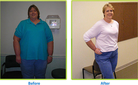 5182903358 21a29f6d63 z Phentermine Before Andafter