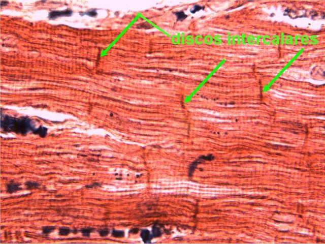músculo cardíaco 2   Destaque para os discos intercalares qu…   Flickr