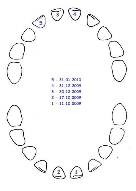Zahnreihenfolge