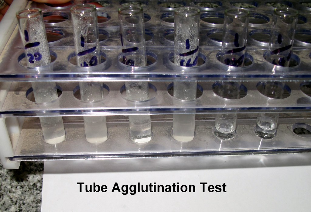 tube agglutination test2