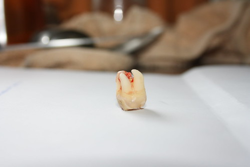 Muela del juicio - Wisdom Tooth | by andresrguez