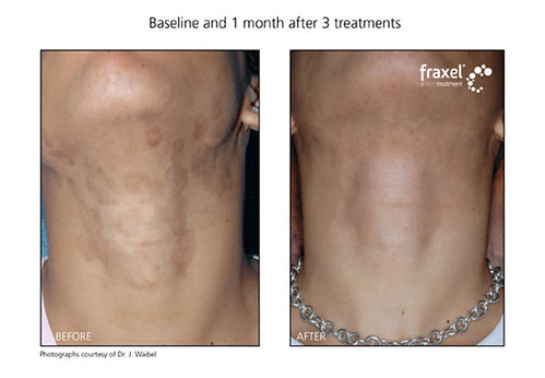 Fraxel before & after for skin discolorations on neck: Cos ...