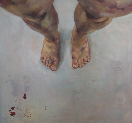 leg bruises tumblr - photo #7