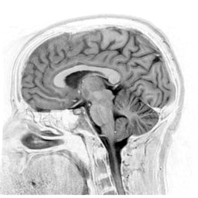 Brain / C. Spine MRI 2008