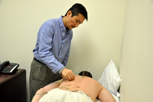 Joe Chang does acupuncture | by bbcworldservice