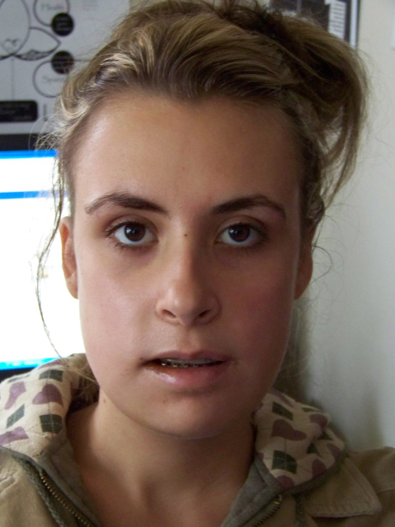 Kayla 4 Days After Her Jaw Surgery