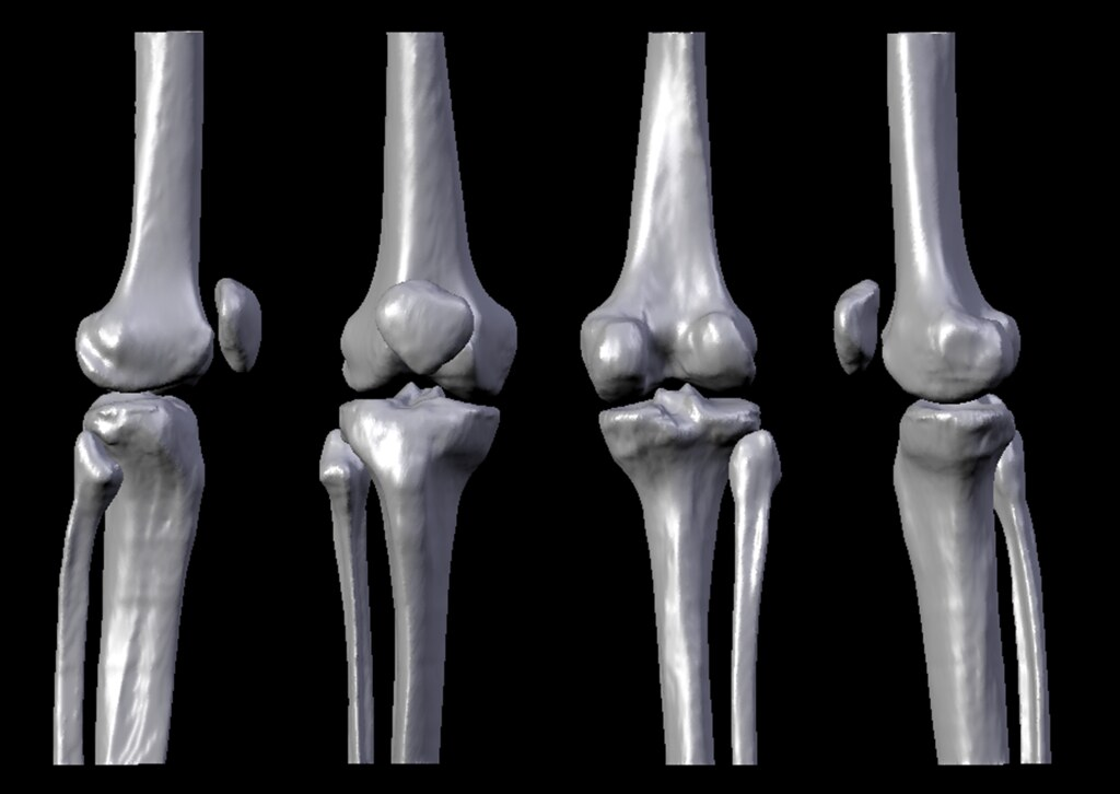 Anatomical Views of the Human Knee Bone Structures | Flickr