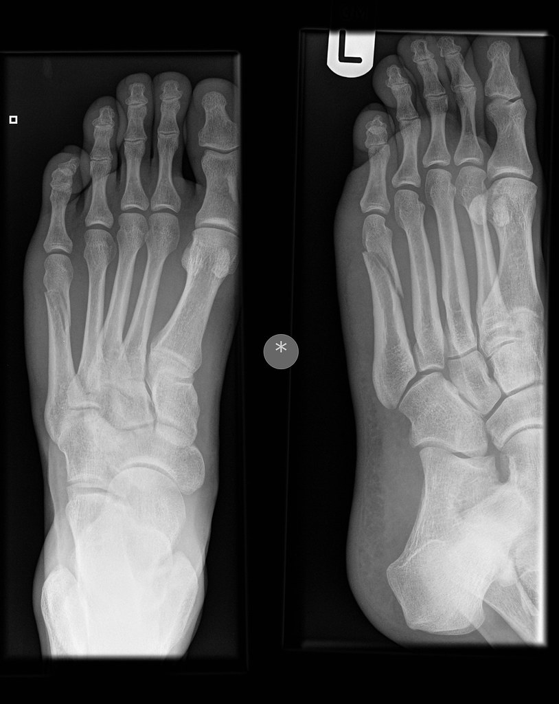 My Left Foot Spiral Fracture Shaft Of 5th Metatarsal