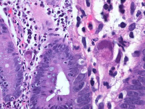Colon With Cmv Colitis Colon With Cmv Colitis The Viral