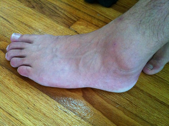 I rolled my ankle ealking the dogs today - now looks about ...