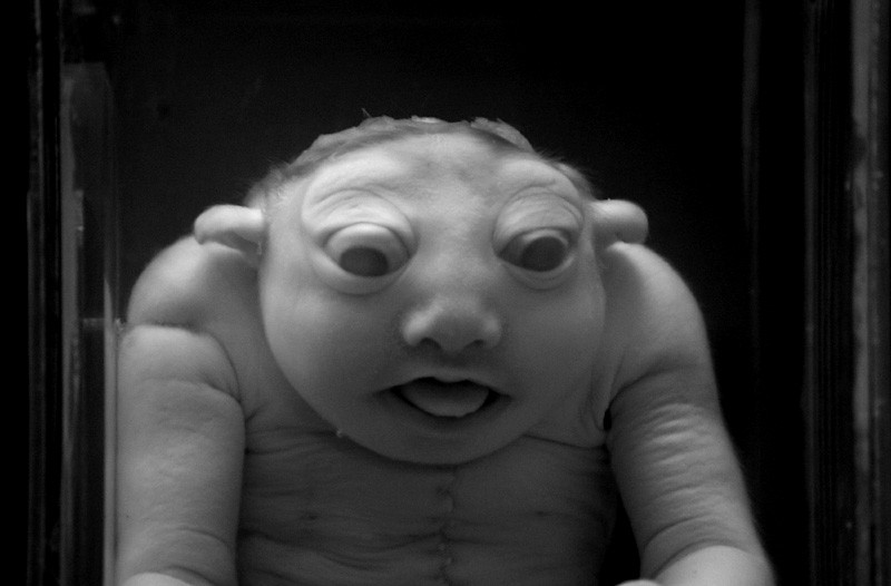 M-906046: Anencephaly | Malformed foetus (National Museum of ...