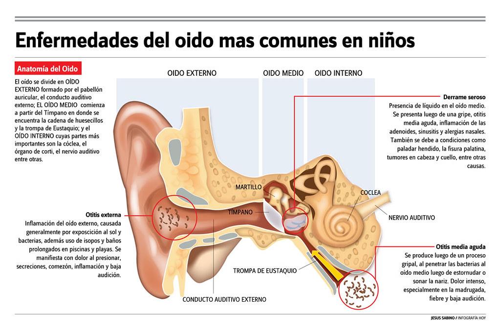 Enfermedades mas comunes del oído | jesus sabino | Flickr