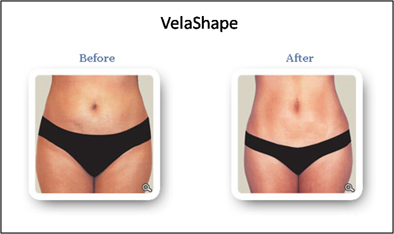 Velashape By American Laser Centers Body Shaping And Cellu