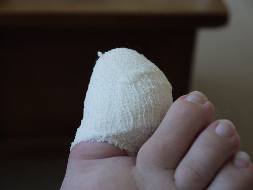 Day Thirty Eight - Sore Toe | by Yortw