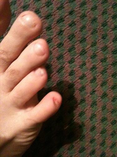 Lost my pinky toenail   Troy Yocum   Flickr
