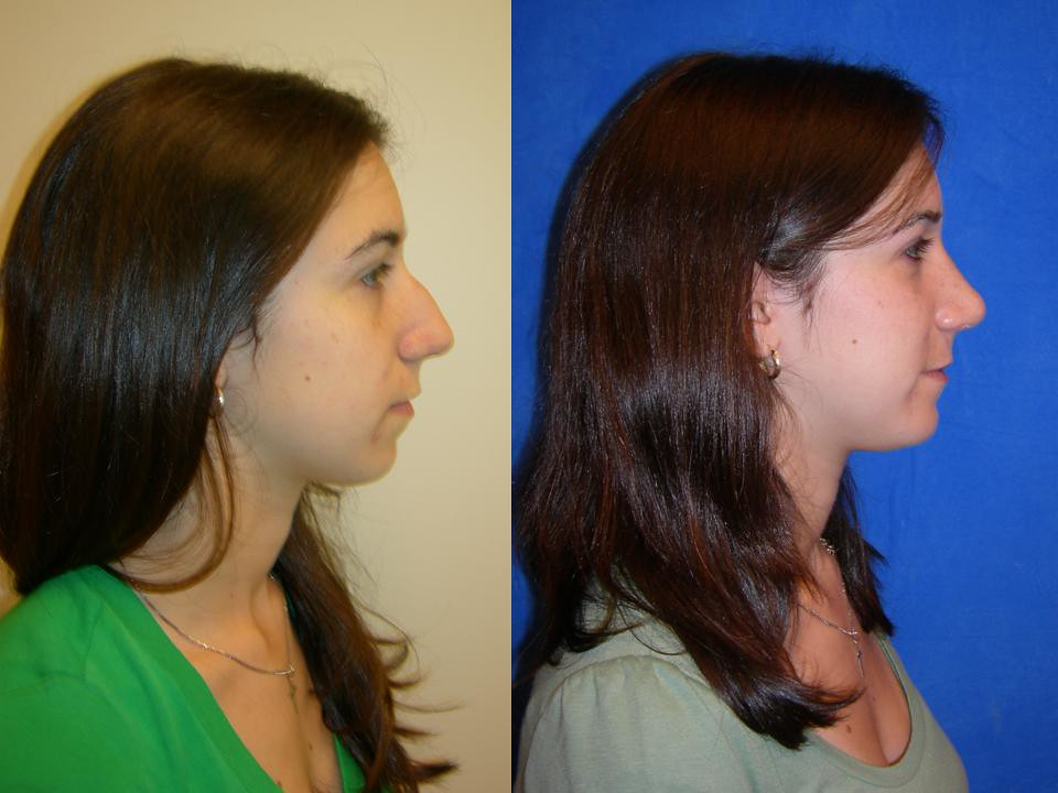 Dr Jeffrey Spiegel Rhinoplasty Surgery This Is A Before