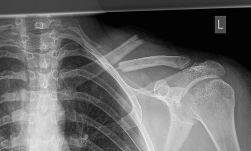 clavicle | by msklibrary