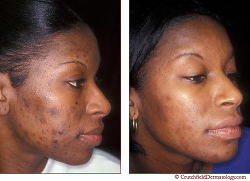 Acne Laser Treatment On African American Woman Before Amp A