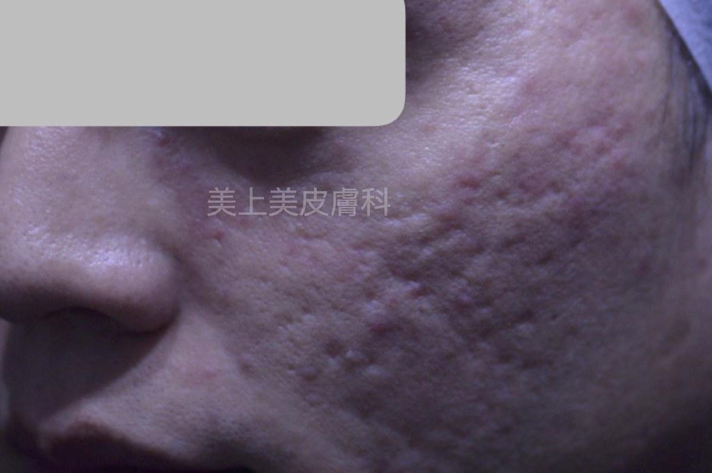 飛梭雷射做痘疤治療已被取代,面對嚴重型凹痘疤很沒有成效。美上美的多層次熔疤術搭配磨皮雷射的複合式痘疤治療對嚴重凹痘疤很有成效!痘疤治療專家就是美上美。