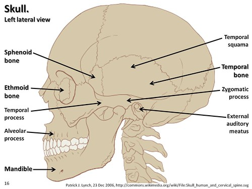 skull diagram lateral view with labels part 2 axial ske. Black Bedroom Furniture Sets. Home Design Ideas
