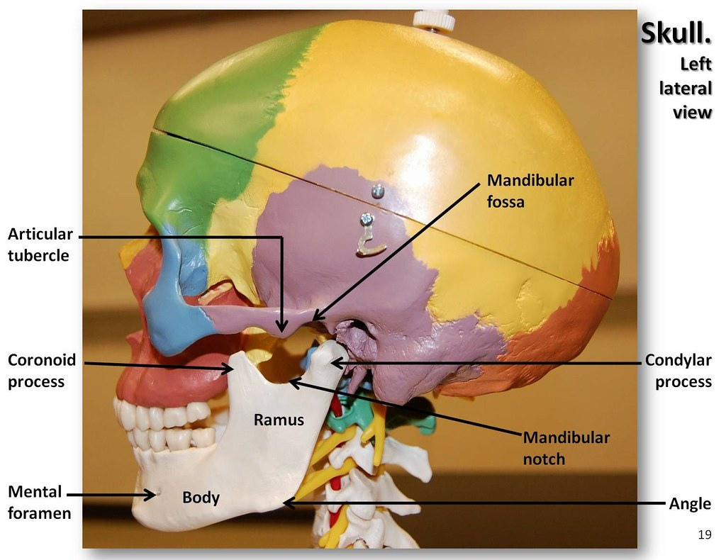 Multi-colored Skull  Lateral View With Labels