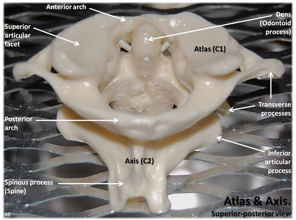 Atlas C1 and Axis C2 vertebrae, superior view with labels ...