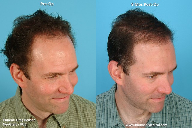 NeoGraft FUE Results - Healing and Growth   Flickr