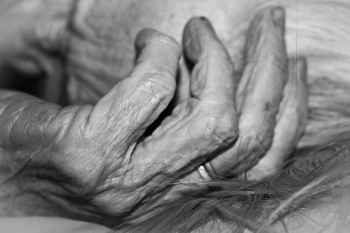 100 year old hands