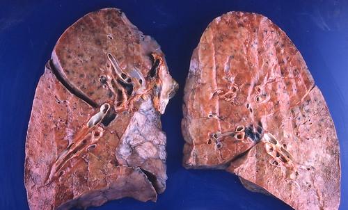 pulmonary sarcoidosis steroid treatment