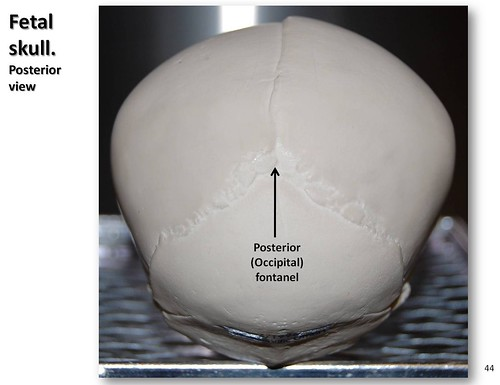 Fetal Skull  Posterior View With Labels