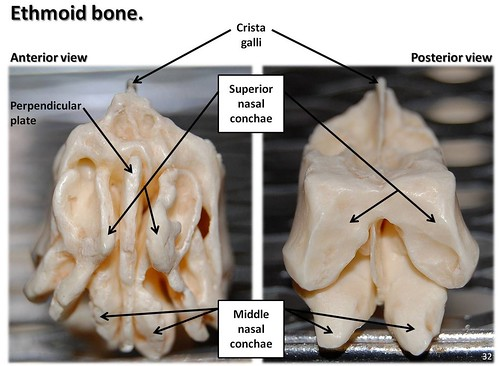 Ethmoid Bone  Anterior And Posterior Views With Labels