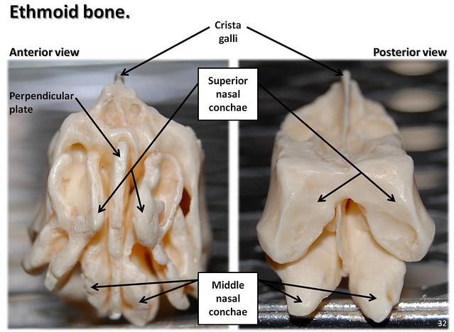 Ethmoid Bone Diagram Image Search Results, Ethmoid, Free ...