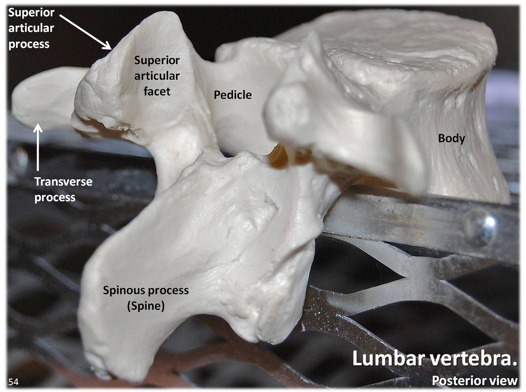 Lumbar Vertebra Posterior View With Labels Axial Skelet