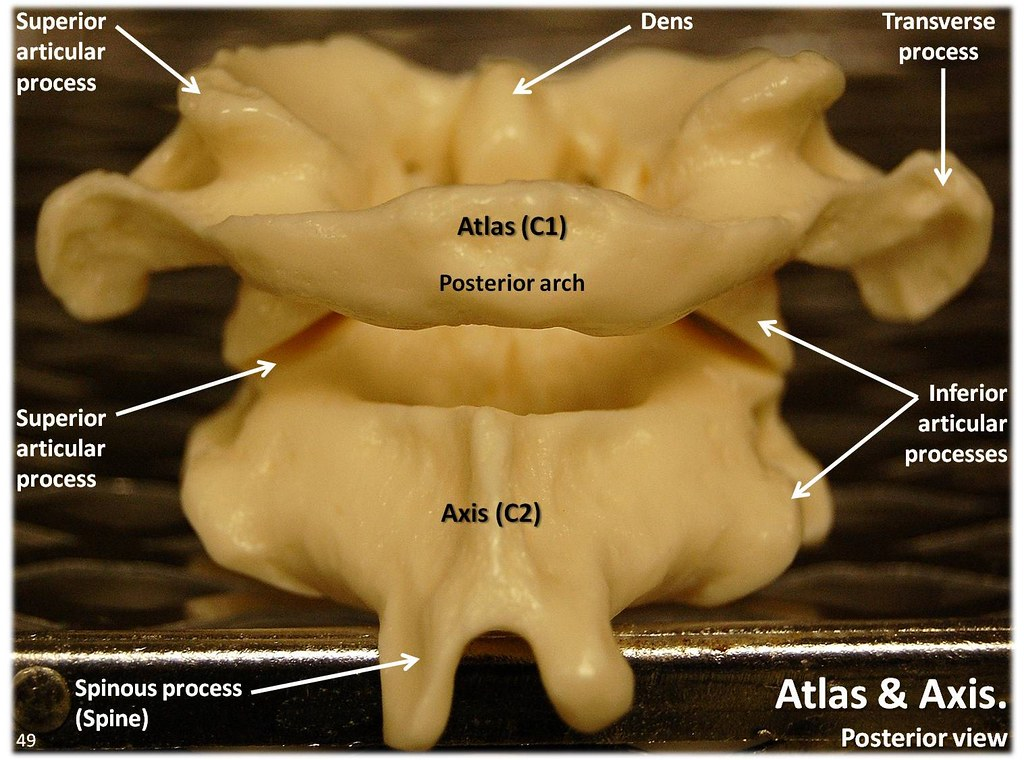 Atlas C1 And Axis C2 Vertebrae  Posterior View With Labels