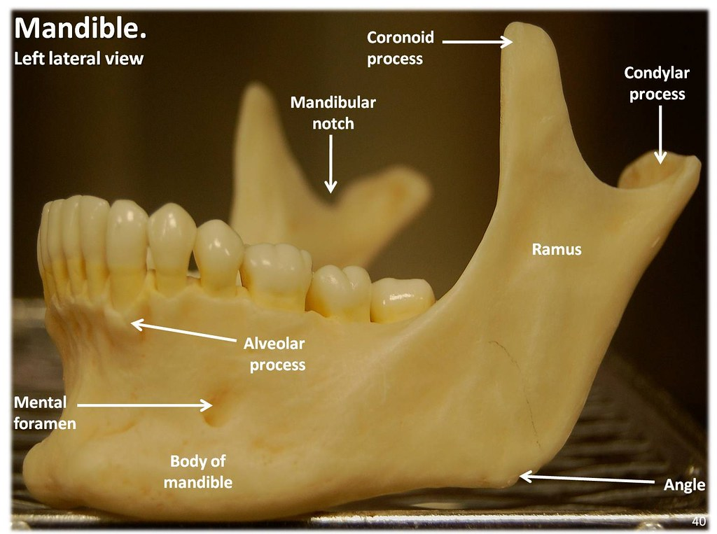 Mandible  Lateral View With Labels